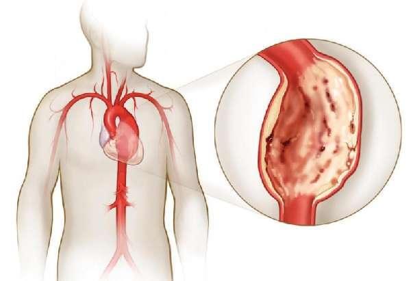 Пролапс митрального клапана: что это, чем опасен, симптомы и лечение