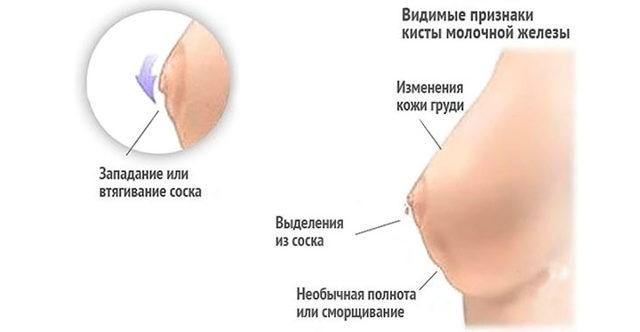 Рак Педжета: причины и симптомы болезни, методы лечения рака сосков, прогноз