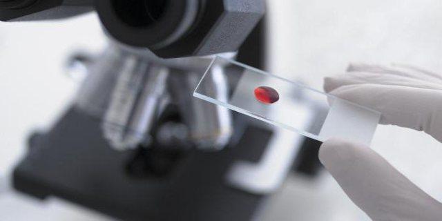 АСЛО в анализе крови: что это такое, нормы антистрептолизина-О и что он показывает