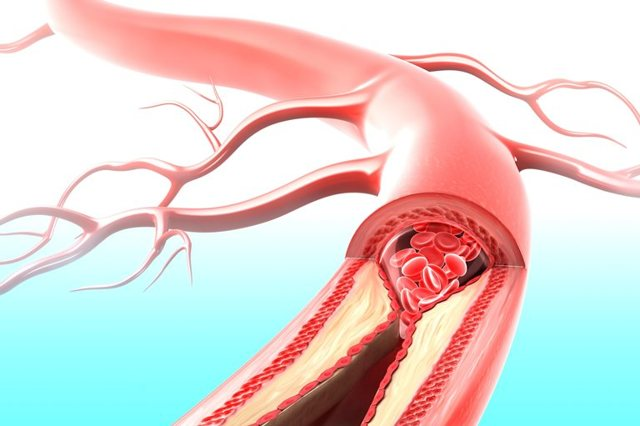 Острый инфаркт миокарда: что это такое, последствия и лечение