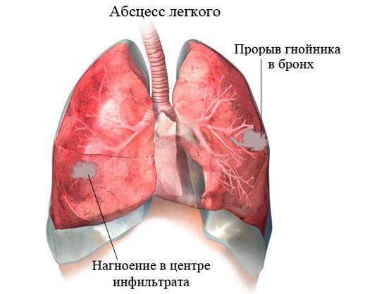 Инфаркт лёгкого: симптомы, лечение, прогноз и последствия