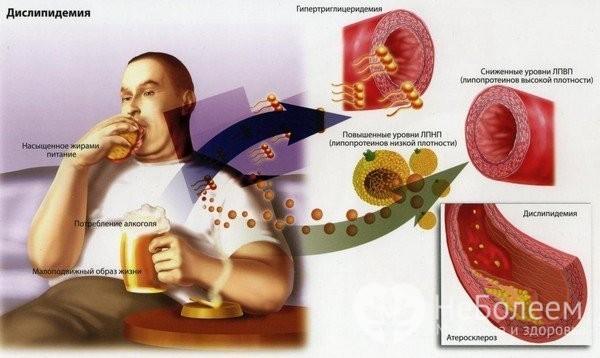 Дислипидемия: что это такое, как лечить болезнь, классификация и симптомы