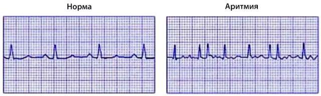 Миксома сердца: что это такое, симптомы и лечение