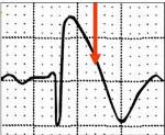 cиндром Бругада: что это, ЭКГ признаки, симптомы и лечение