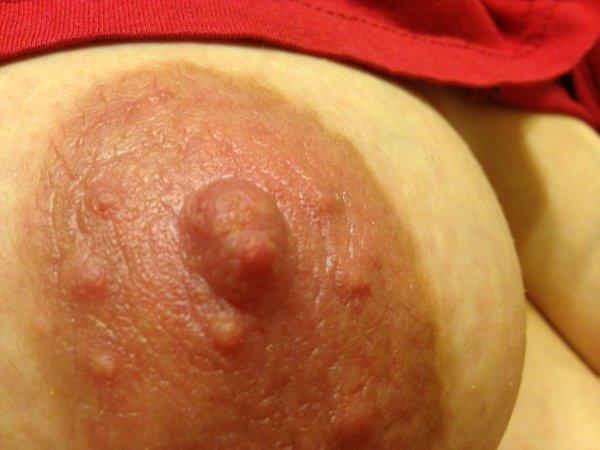 Белые точки на сосках при грудном вскармливании: закупорка протоков и прочее