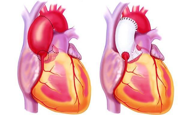 Атеросклероз аорты сердца: что это такое симптомы лечение