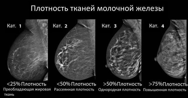 Исследование молочных желез. Современные методы и способы диагностики заболеваний молочных желез