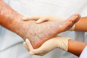 Венозная недостаточность нижних конечностей: симптомы и лечение ХВН и ОВН