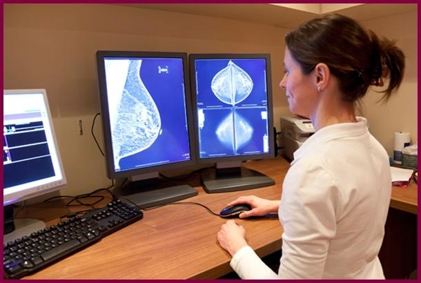 Что такое маммография груди: как ее делают, как готовиться, результаты