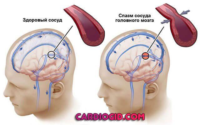 Венозная дисциркуляция (затруднен отток): симптомы, лечение и причины