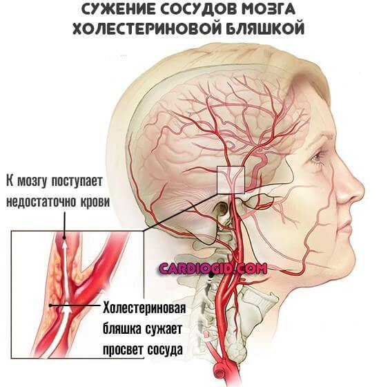 Варолиев мост: анатомия, строение и функции в головном мозге