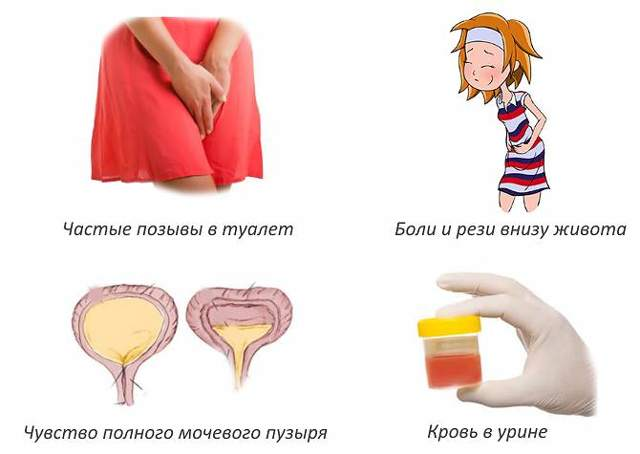 Лечение цистита при грудном вскармливании после родов: как и чем лечить
