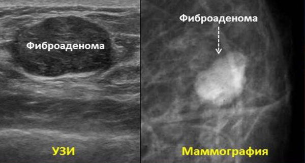 Фиброаденома молочной железы: удалять или нет, сравнение методов лечения