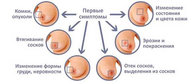 Соски при беременности: как должны меняться, чувствительность и стимуляция