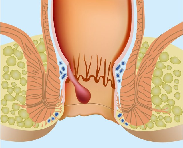 Дюфалак при грудном вскармливании: можно ли принимать после родов и при лактации
