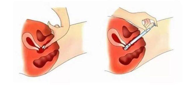 Тержинан при грудном вскармливании: можно ли принимать свечи и таблетки после родов