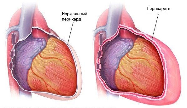 Обширный инфаркт сердца: что это такое, симптомы, лечение и прогноз