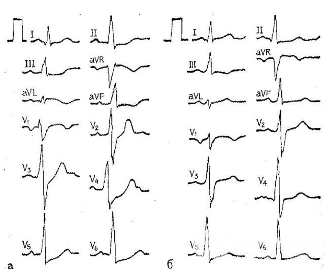 20 причин инфаркта мокарда и факторы риска у мужчин и женщин