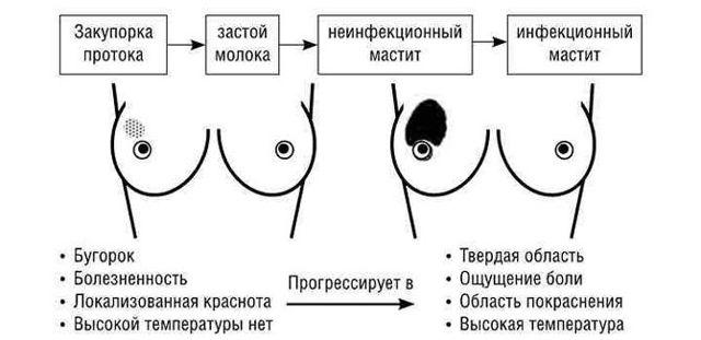 Как перетянуть грудное молоко: правильно перевязать грудь для остановки лактации