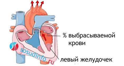 Фракция выброса сердца: норма у взрослых, причины низкой и повышенной ФВ