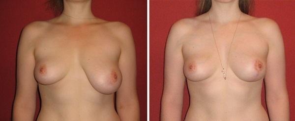 Коррекция груди - показания и виды маммопластики: увеличение, уменьшение, подтяжка