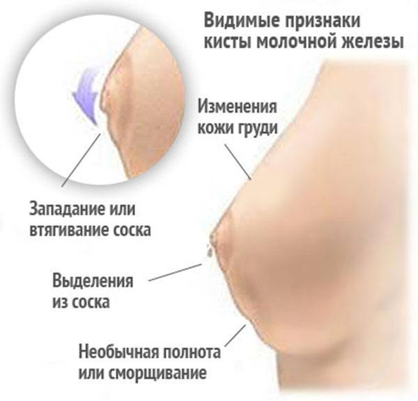 Фиброзно-кистозная мастопатия: что это такое, симптомы, лечение