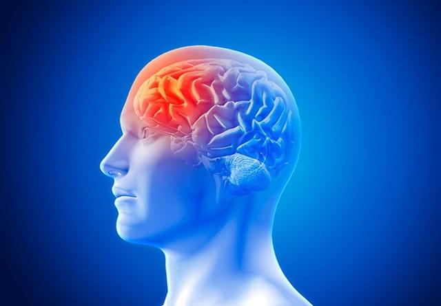 Последствия ишемического инсульта левой стороны и сколько живут
