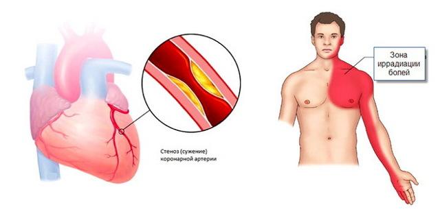 Стенокардия напряжения: симптомы, функциональные классы (ФК) и лечение