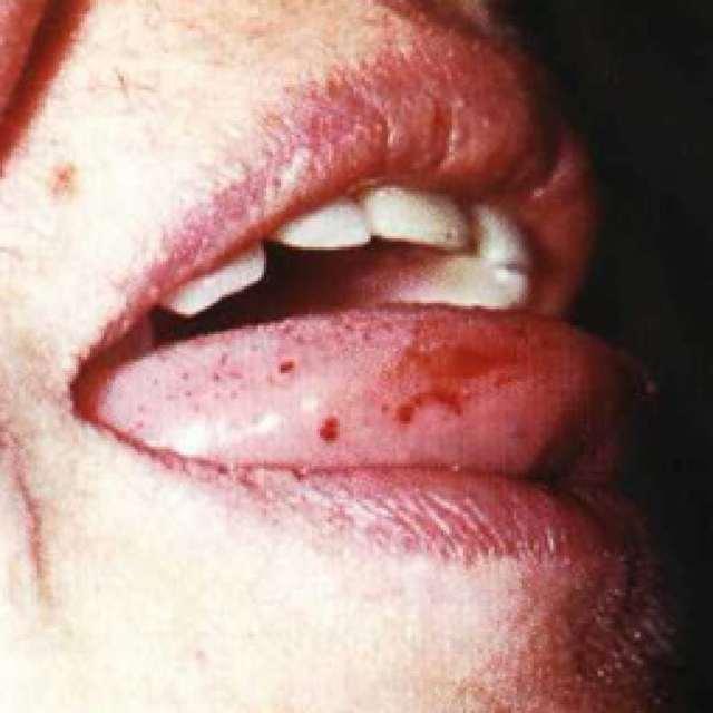 Тромбоцитопеническая пурпура: что это такое, лечение, клиника, причины