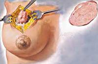 Аденома молочной железы: что это такое, симптомы, причины, методика лечения