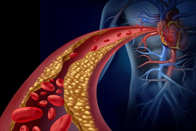 Боль в правой грудине у женщин: причины, симптомы и возможные заболевания