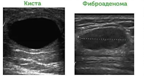 ФАМ молочной железы: что это такое, разновидности, методы лечения фиброаденомы