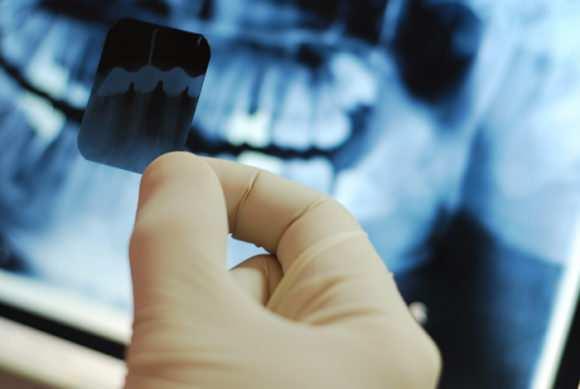 Рентген при грудном вскармливании: можно ли его делать кормящей маме