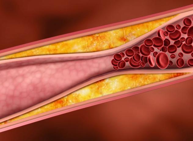 Спазм сосудов (ангиоспазм): симптомы и виды, причины и лечение
