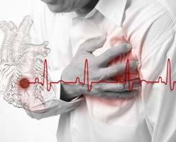 Острый коронарный синдром (ОКС): симптомы, лечение и неотложная помощь