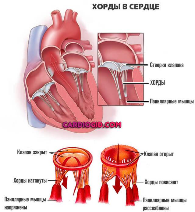 Дополнительная хорда в сердце: что это такое у ребенка, симптомы и лечение