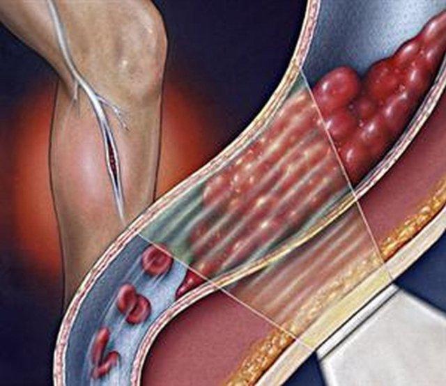 Тромбоэмболия: симптомы и признаки, причины, лечение и чем опасна