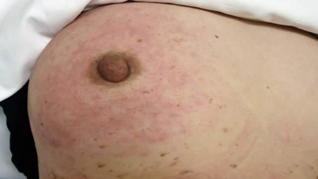 Красные пятна на груди у женщин: причины, симптомы, лечение и профилактика