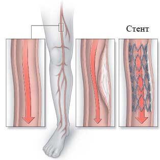 Атеросклероз сосудов нижних конечностей: симптомы и лечение, фото