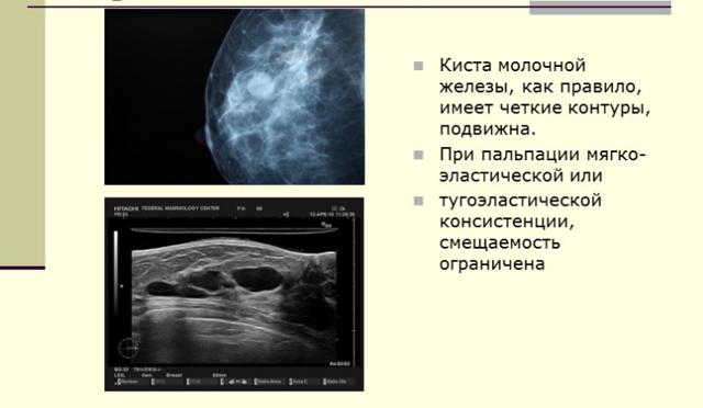 Киста молочной железы: лечение народными средствами - обзор методов