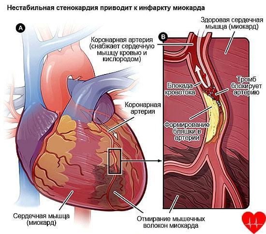 Нестабильная стенокардия: симптомы и лечение, что это такое и догоспитальная помощь