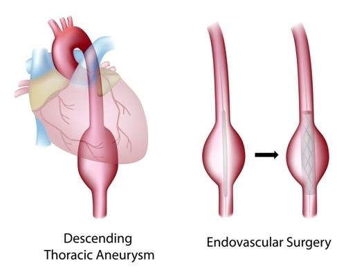 Аневризма аорты сердца что это такое, симптомы, лечение и прогноз