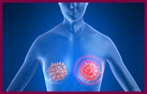 Почему болит левая грудь: причины боли и покалывания в грудных железах у женщин