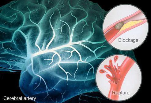 Хроническая ишемия головного мозга: что это такое, 1,2,3 степени, симптомы и лечение
