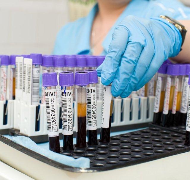 Лимфаденопатия подмышечных лимфоузлов: что это такое, причины, виды, диагностика