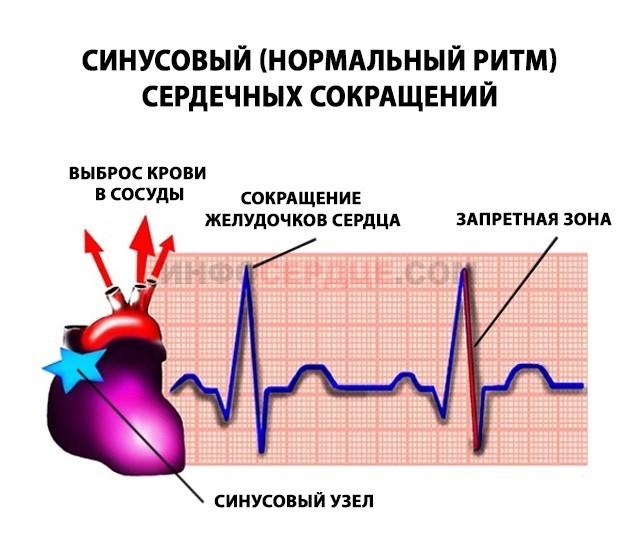 ритмы сердечного сокращения картинки вами