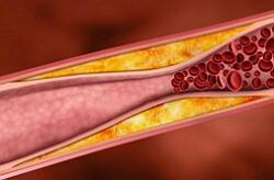 Перемежающаяся хромота: что это такое, основные признаки, лечение и последствия