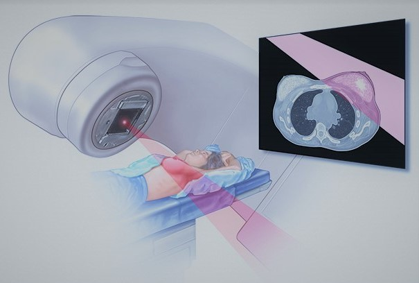 Лечение рака молочной железы: операция, химиотерапия, гормоны, народные средства