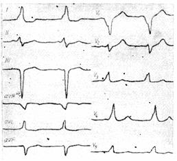 Синдром ВПВ: что это такое, причины, признаки на ЭКГ, симптомы и лечение