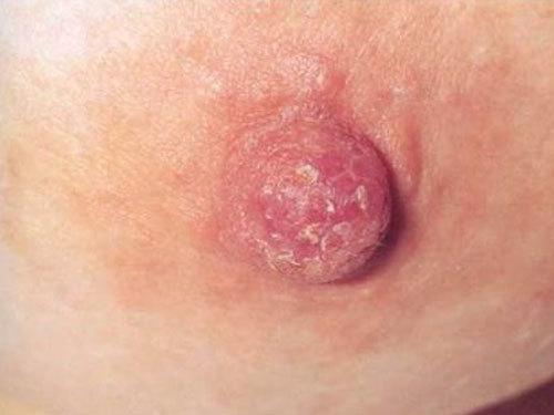 Молочница грудных желез при грудном вскармливании: причины, симптомы, лечение